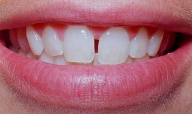 prichiny-vozniknovenija-shherbinki-mezhdu-perednimi-zubami