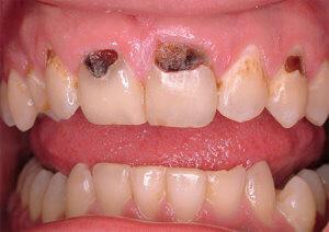 Как остановить кариес зубов — Зубы