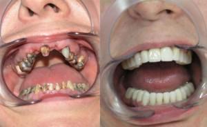 protezirovanie-zubov-800x490
