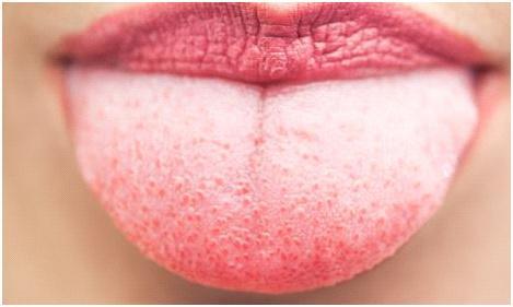 На языке прыщик болит, что делать? Чем лечить белый прыщик находящийся ближе к горлу и на кончике языка