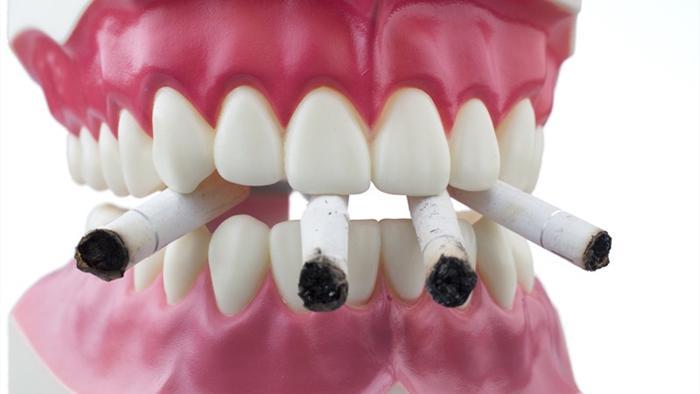 Рак зуба: симптомы, признаки и методы лечения