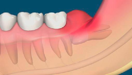 rastet-zub-mudrosti-i-bolit-desna-4