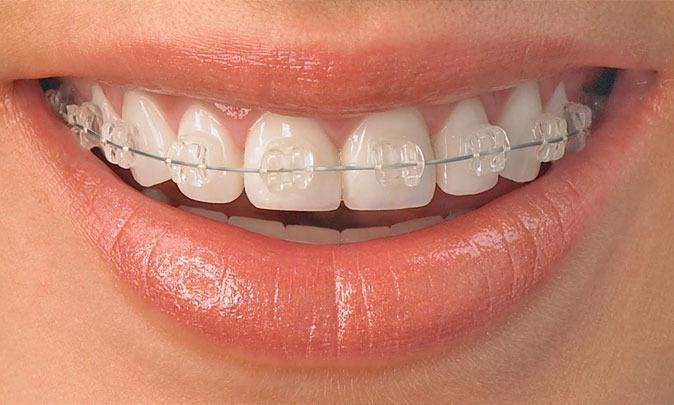 Поставили брекеты зубы не болят