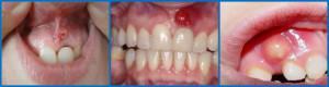 Шишка на десне над зубом: что делать, если надулся шарик с гноем, чем лечить образование