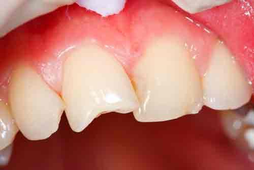 Откололся кусочек зуба — что делать, если откололся, переднего, коренного или молочного зуба