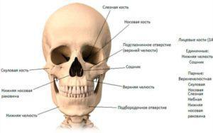 Последствия перелома скуловой кости и его лечение