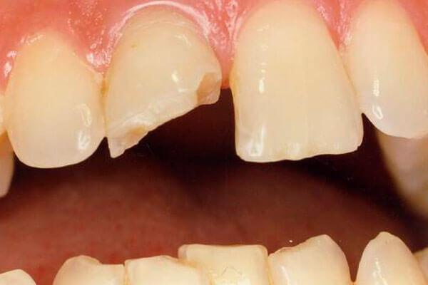 Откалываются зубы, что делать, если откололся кусочек зуба 48