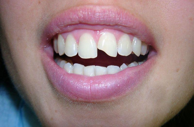 Сонник зуб поломался без крови
