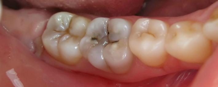 Лечение поверхностного кариеса дентина