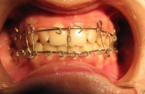 Перелом челюсти - симптомы и последствия