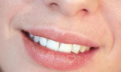 Во рту белая пленка — Болезни полости рта