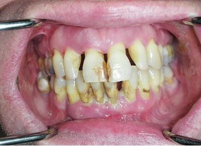 Проблема разрушения зубов у взрослых причины профилактика и лечение