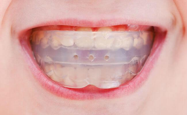 Трейнер для зубов и его разновидности (Т4К, Т4А, Т4В): фото до и после