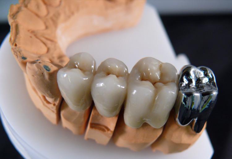 Напыление зубных коронок