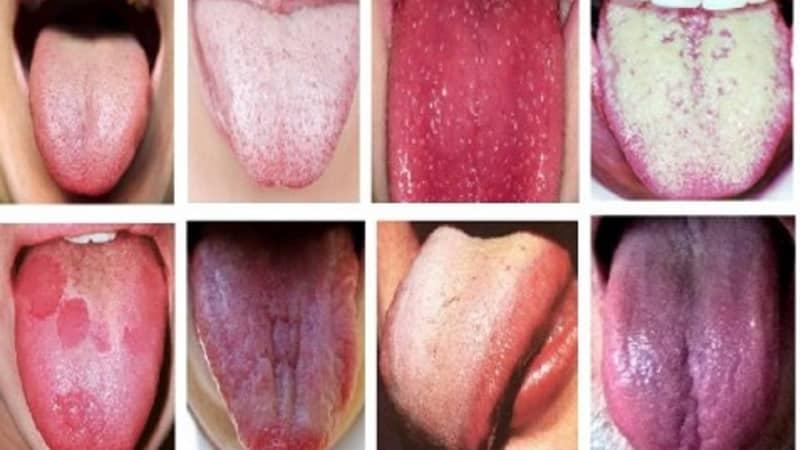 заболевания языка фото и описание