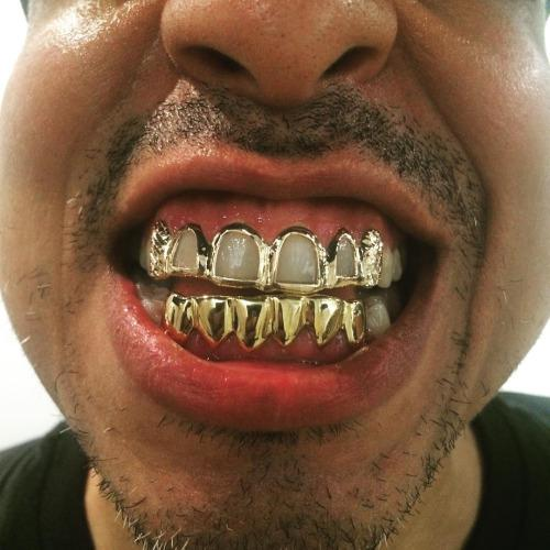 Золотые вставки на зубы — Зубы