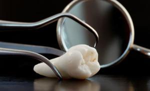 Зуб мудрости растет и болит десна: что делать и как снять воспаление