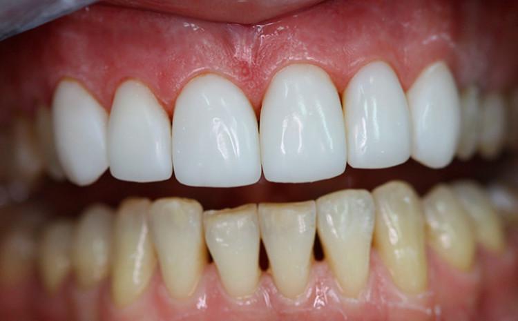 искусственные зубы виниры