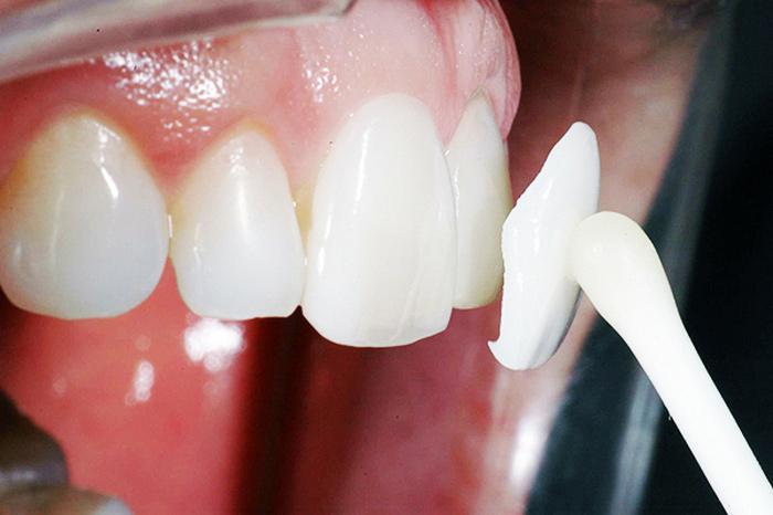 Накладки на зубы (накладные зубные протезы) без обточки: фото