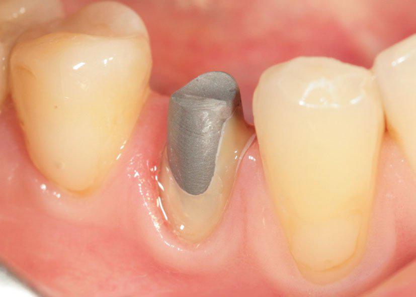 Культевая вкладка в зуб под коронку