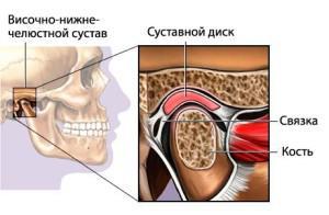 Изображение - После стоматолога болит челюстной сустав vn1-300x196