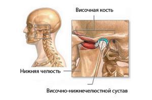 Операция челюстного сустава - Все про суставы