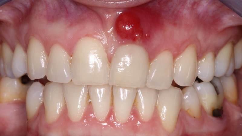 Инфекция при воспалении корня зуба быстро распространяется.