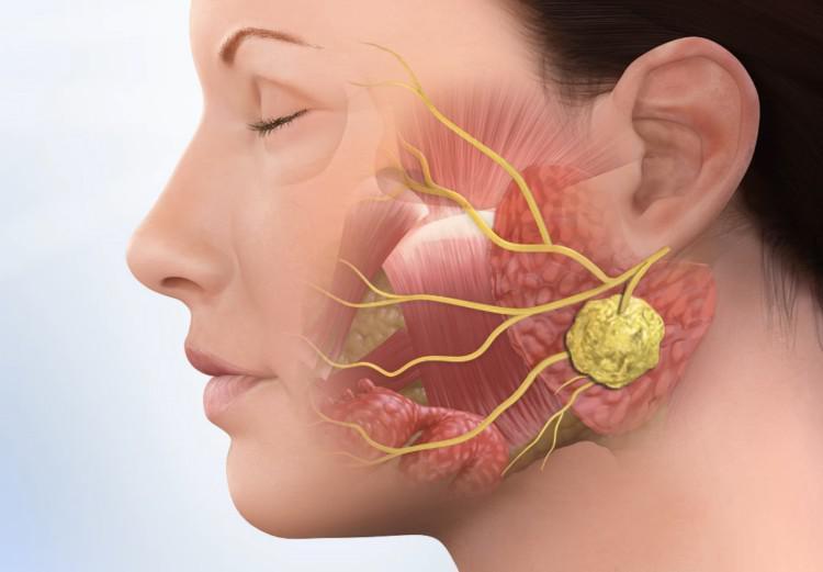 Воспаление слюнной железы лечение в домашних условиях — Зубы
