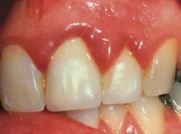 Если натирают зубные протезы