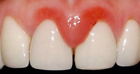 Воспаление десны под зубом