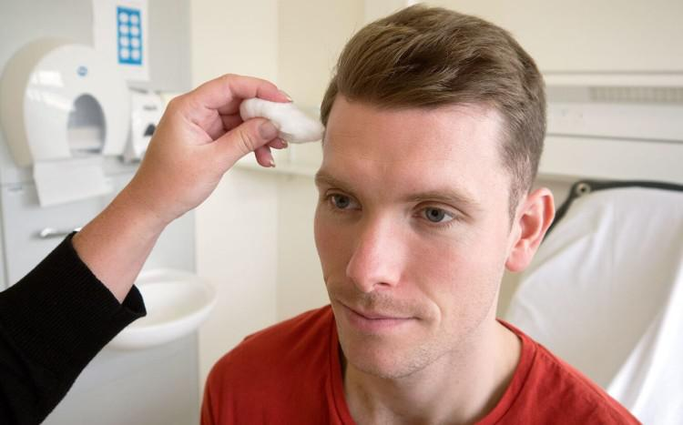 Симптомы и лечение неврита воспаления лицевого нерва