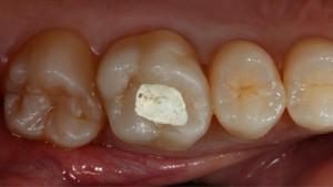 Сколько по времени пломбируют зуб