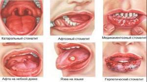 Болячки во рту: причины и лечение, как лечить белые пятна, фото