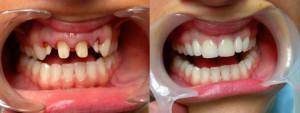 vstavit_zubi_iz_metallokeramiki