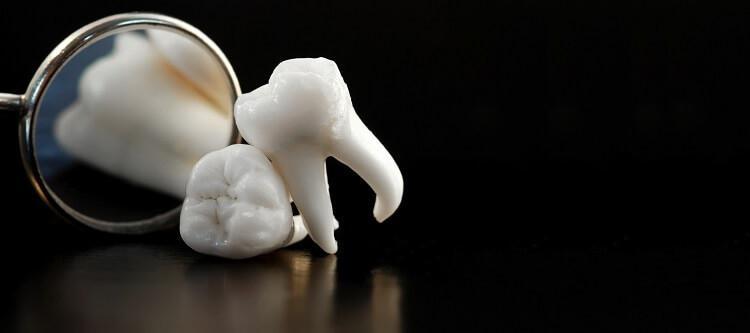 vyirashhivanie-zubov