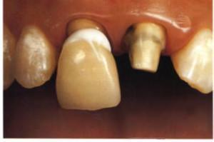 Почему коронка на зубе со штифтом стала шататься: что делать и можно ли ее закрепить? - МедРаботник