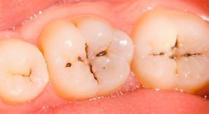 Почему появляются язвы во рту
