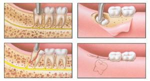 Белая ткань в лунке после удаления зуба