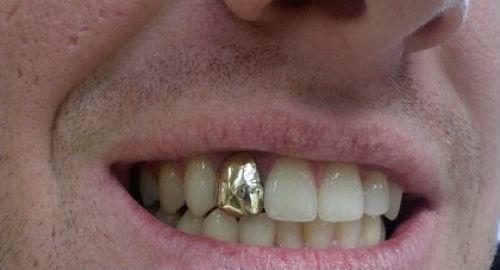 К чему может сниться кариес на зубе у себя или у других ищем толкования в сонниках