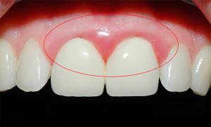 Воспаление зубного нерва: симптомы и методы лечения