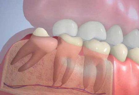 zub-mudrosti-4