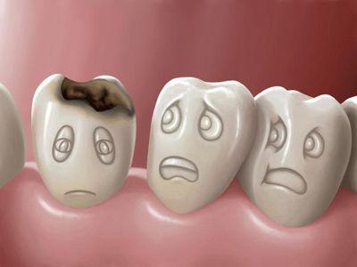 Как избавиться от кариеса на зубах в домашних условиях?