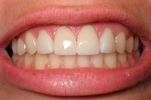 Как подточить зуб в домашних условиях — Болезни полости рта