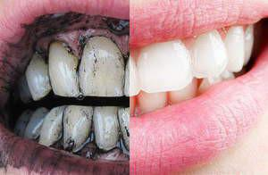 Как часто можно чистить зубы активированным углем