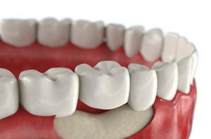 Восстановление костной ткани зубов народными средствами