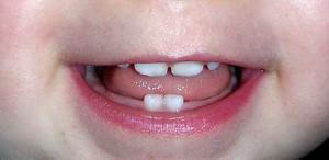 Почему у ребенка в полтора-два года гниют молочные зубы как быть и что делать родителям