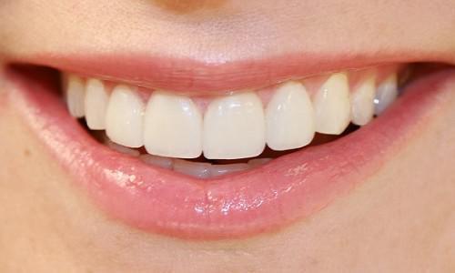 Как укрепить десна, если шатаются зубы
